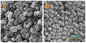 micrographs of E coli bacteria