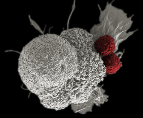 This electron micrograph shows an oral squamous cancer cell being attacked by two cytotoxic T cells.