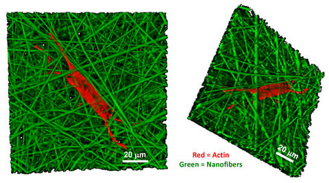 confocal microscope images detail the growth of a human bone marrow stromal cell on a nanofiber scaffold.