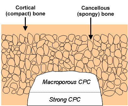 Schematic of cortical and cancellous bone, showing a cavity partially filled with a macroporous CPC paste, followed by a strong CPC paste.