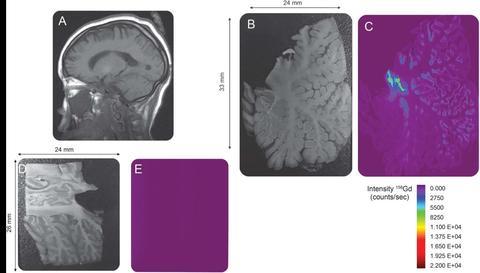 Distribution Map of gadolinium deposition within the cerebellum - Neurology, 88 (12) 1206-1208, 2017