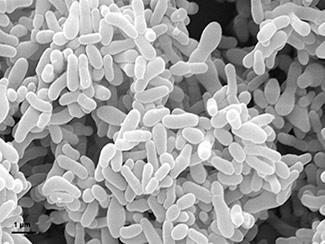 Scanning electron micrograph of Gardnerella vaginalis bacteria