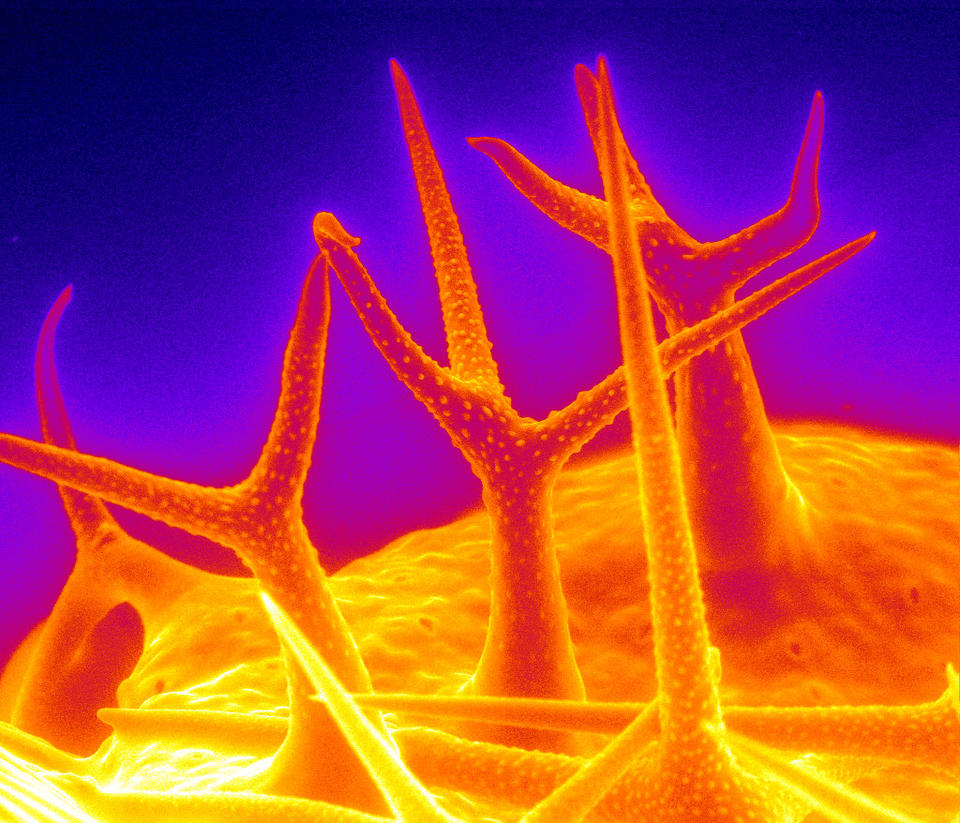 Hairlike structures emerge from an orange shape on a blue background