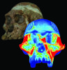 Finite Element Model and Color Mapping of Cranium