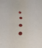 Photo of blood droplets